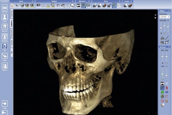 Digitale Volumentomographie (DVT)