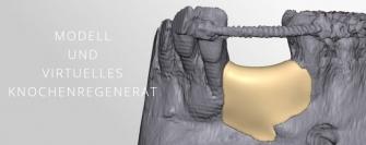 Modell und virtuelles Knochenregenerat